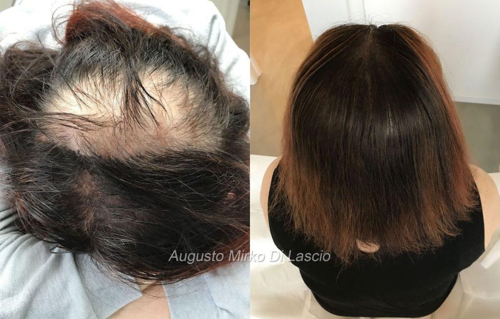tricopigmentazione nella donna