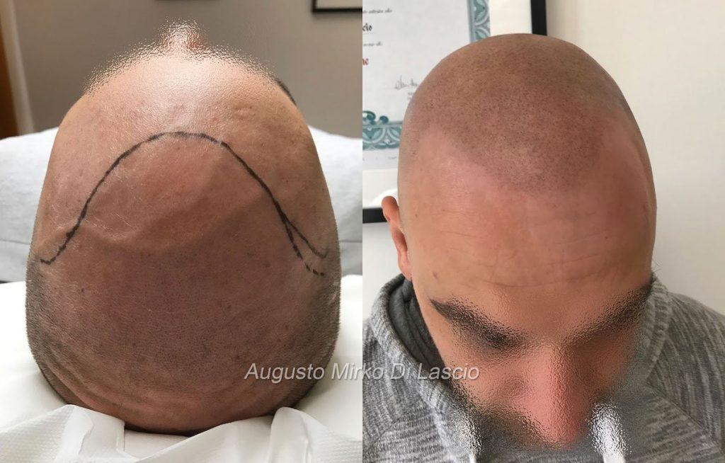 trattamento tricopigmentazione effetto rasato leggero