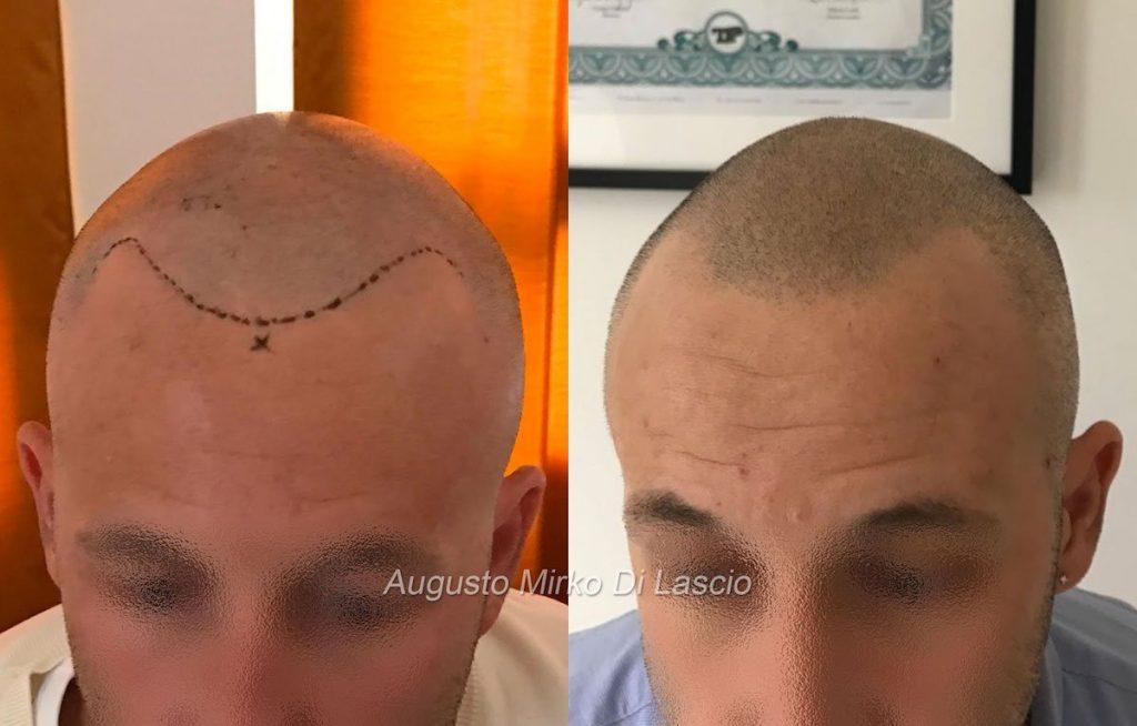 trattamento tricopigmentazione effetto rasato media densità