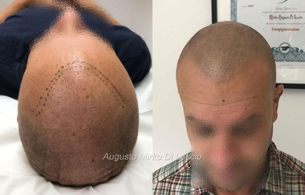 tricopigmentazione post trapianto
